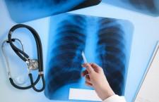 туберкулез, рентген, легкие, врач, медик, медицина